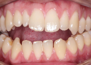 Invisalign Marlow Before 3