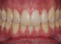 Invisalign Marlow After 3