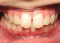 Invisalign Marlow Before 2