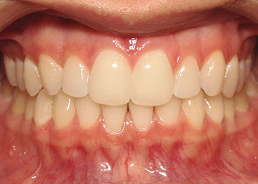 Invisalign Marlow After 2