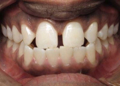 Invisalign Marlow Before 1